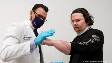 Photo of Joe DiMeo: Neues Leben nach Gesichts- und Handtransplantation